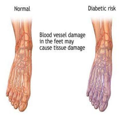 Diabetic Foot Care Corrigan Podiatry
