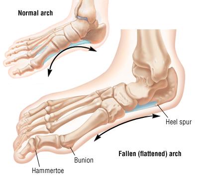 Flat Foot   Corrigan Podiatry